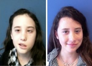 Gracie Doran B & A Facial Reanimation Surgery with Dr. Azizzadeh.