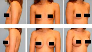 Before and After Breast Augmentation photos courtesy of Dr. Joshua Kreithen, Holcomb Kreithen Plastic Surgery, Sarasota, FL.