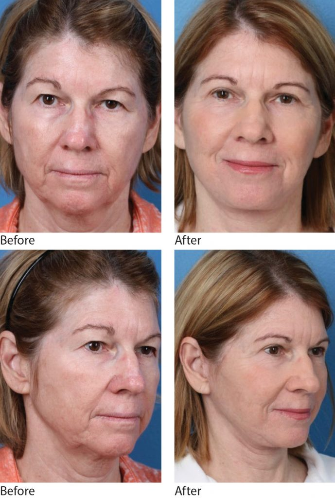 Laser Assisted Facelift. Photos courtesy of Dr. J. David Holcomb, Sarasota, FL.