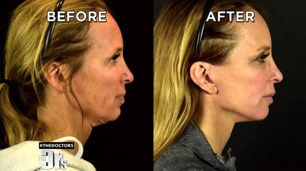 Dr. Jennifer Berman Before-and-After Photos of Micro-Neck Lift by Dr. Kian Karimi