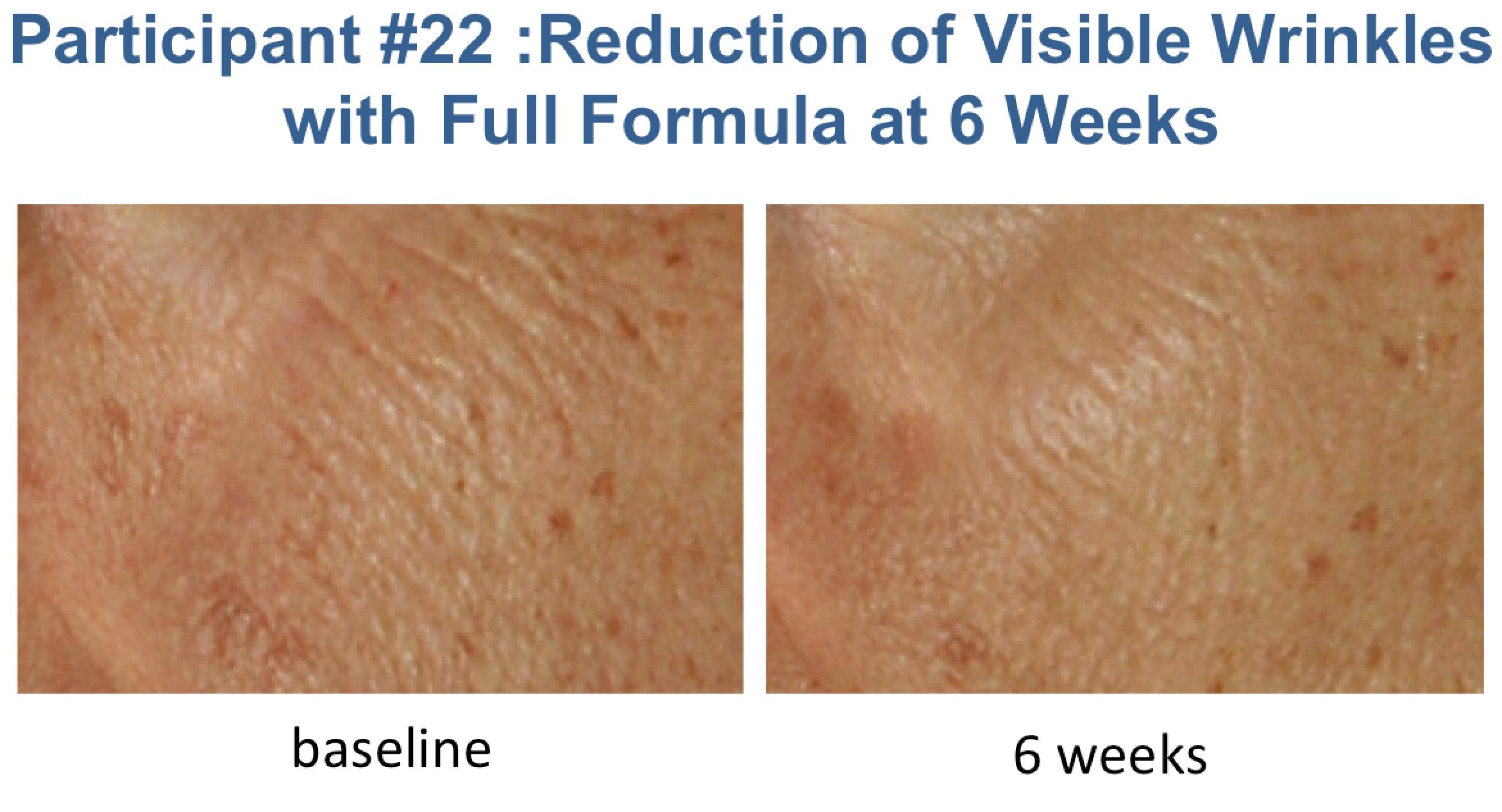 Wrinkles 2 pic  - Aesthetic Insider